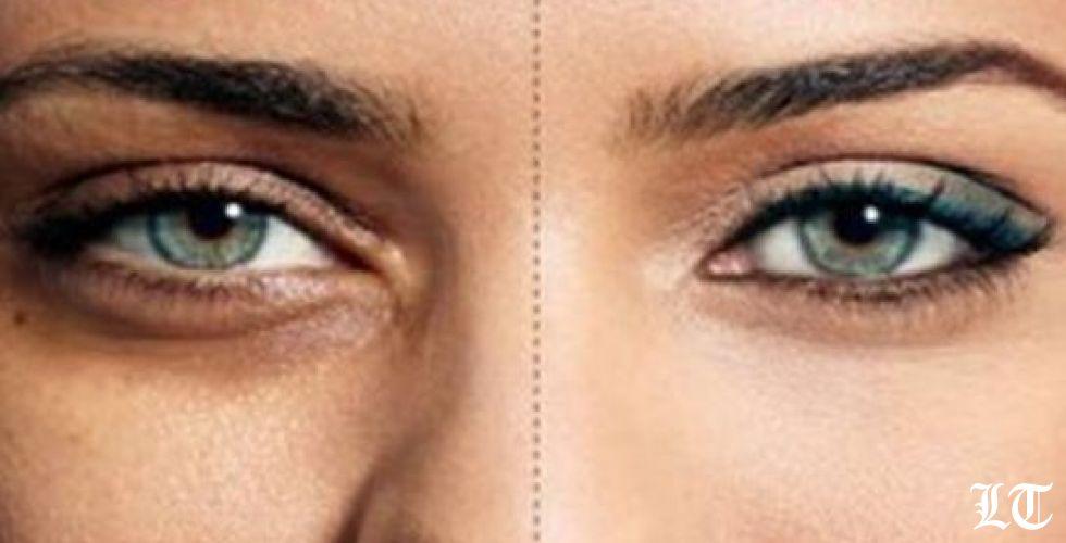طرق معالجة الهالات السوداء تحت العينين
